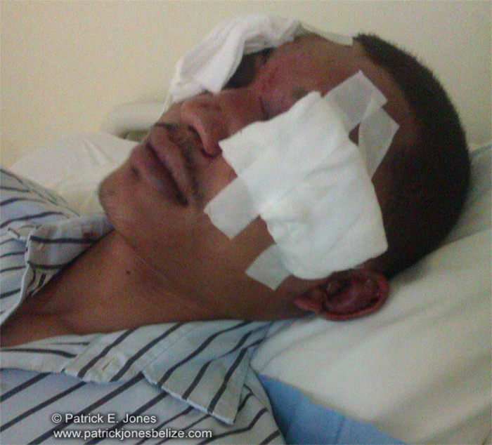 Jonathan Chavez (Attack victim)