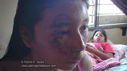 Corozal traffic accident