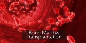 bone-marrow-transplantation-detailed