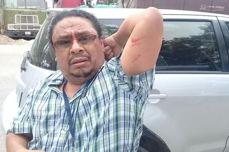 Guatemalan reporter claims he was assaulted by Belizean authorities