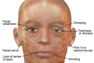 Be on the lookout for Bell's Palsy